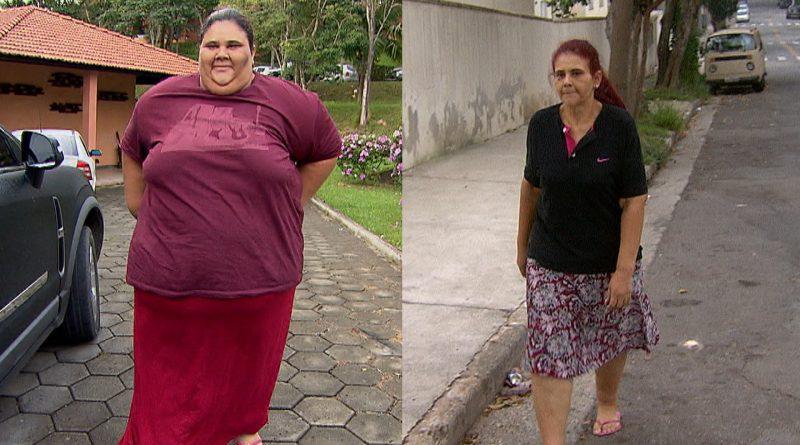 Câmera Record: mulher que perdeu 140 kg após cirurgia bariátrica Crédito da foto: divulgação/ Record TV