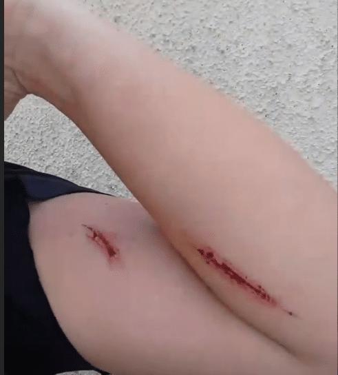 Ana Paula mostra braço ferido e acusa marido (Foto/reprodução Instagram)