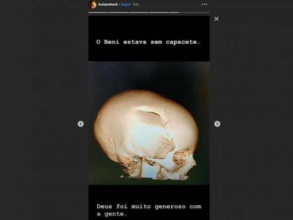 Luciano Huck publica foto da lesão de Benício após o acidente